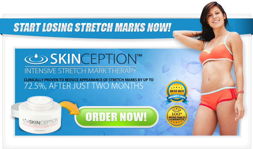buy stretchmark cream