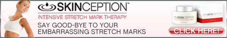 Order Stretch Mark